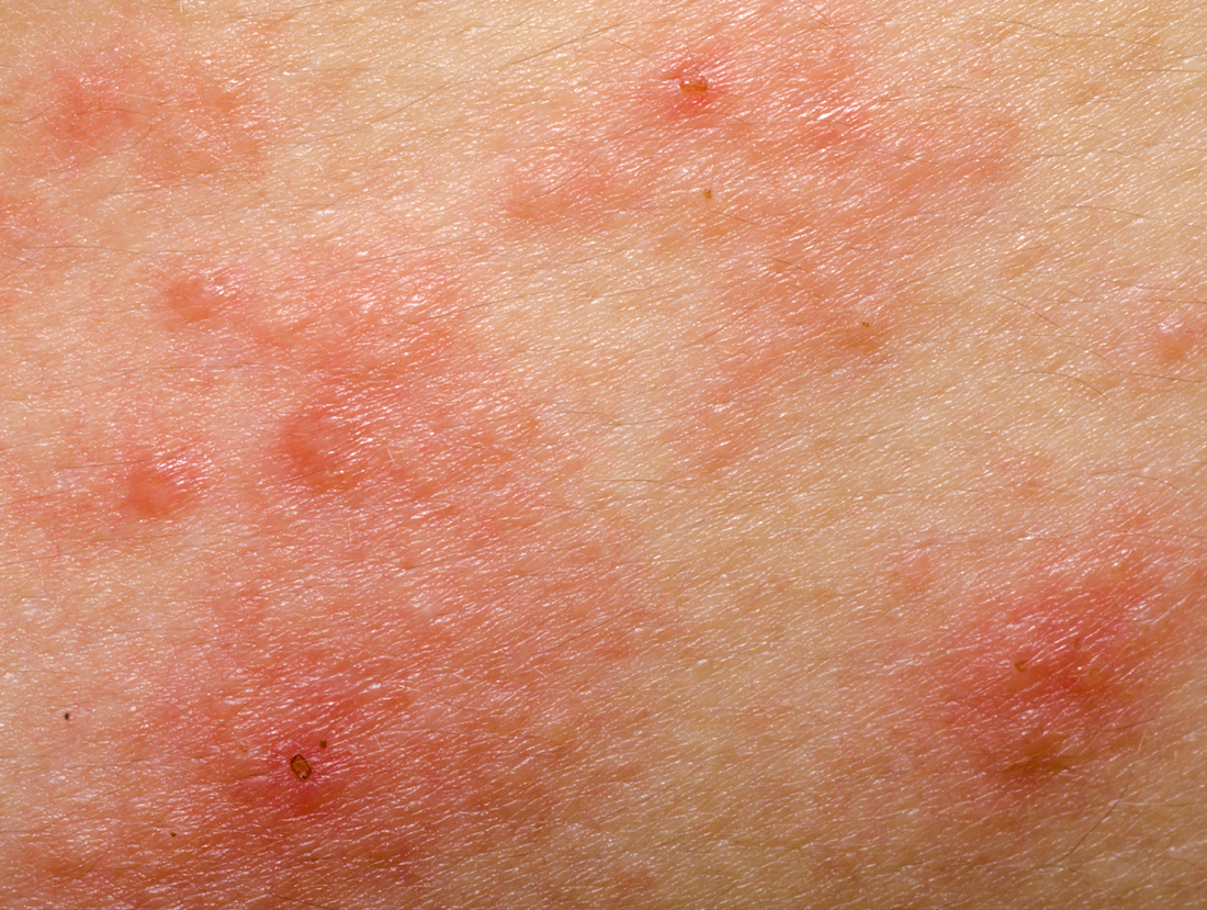 Causes and Treatment for Eczema